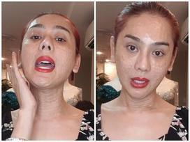 RÙNG MÌNH với gương mặt chi chít nốt sần của Lâm Khánh Chi