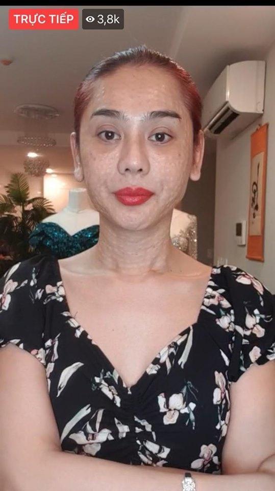 RÙNG MÌNH với gương mặt chi chít nốt sần của Lâm Khánh Chi-1