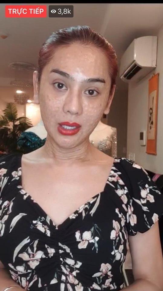 RÙNG MÌNH với gương mặt chi chít nốt sần của Lâm Khánh Chi-5