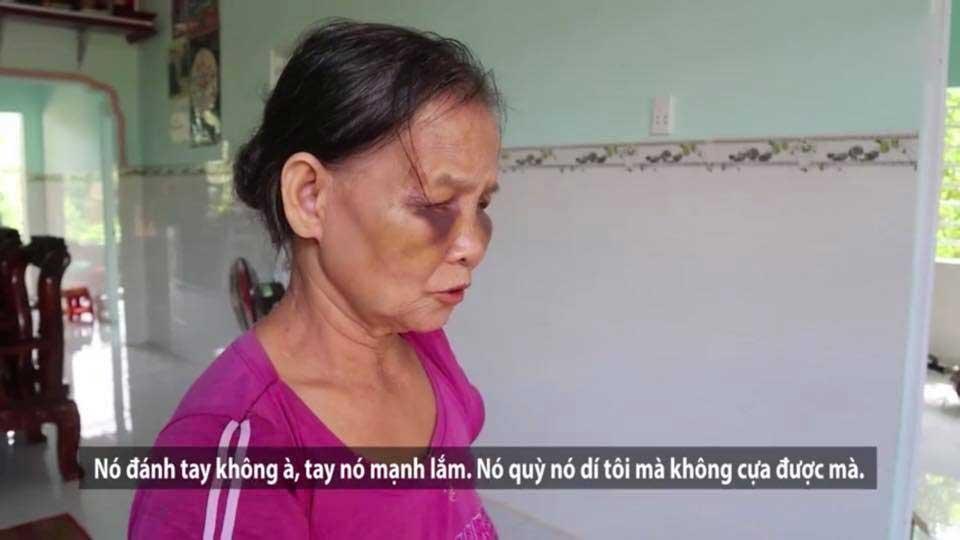 Mẹ chồng bị con dâu khóa tay, đánh tím mặt, không há được mồm chỉ vì... cái bô-3