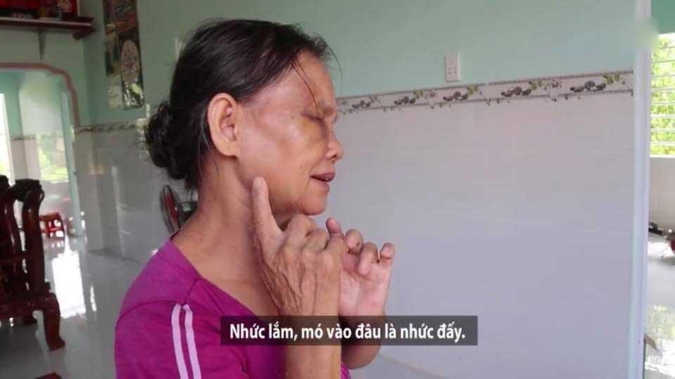 Mẹ chồng bị con dâu khóa tay, đánh tím mặt, không há được mồm chỉ vì... cái bô-4