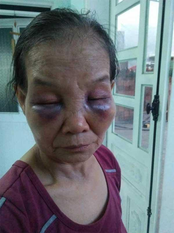 Mẹ chồng bị con dâu khóa tay, đánh tím mặt, không há được mồm chỉ vì... cái bô-2