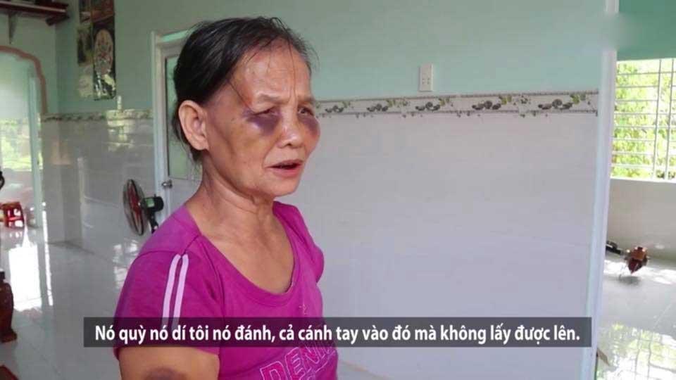 Mẹ chồng bị con dâu khóa tay, đánh tím mặt, không há được mồm chỉ vì... cái bô-5