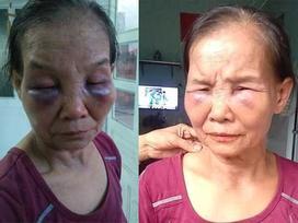 Mẹ chồng bị con dâu khóa tay, đánh tím mặt, không há được mồm chỉ vì... cái bô