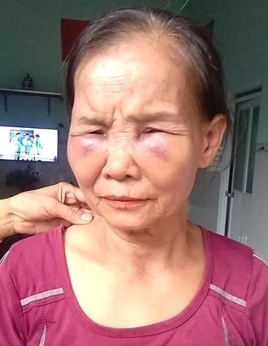 Mẹ chồng bị con dâu khóa tay, đánh tím mặt, không há được mồm chỉ vì... cái bô-1