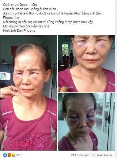 Vụ mẹ chồng bị con dâu đánh bầm dập chỉ vì cái bô: Bà ấy thường lấy nước tiểu trừ tà để tôi ngoan hơn-1