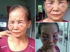 Vụ mẹ chồng bị con dâu đánh bầm dập chỉ vì cái bô: 'Bà ấy thường lấy nước tiểu trừ tà để tôi ngoan hơn'