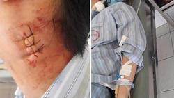 Người mẹ phẫn uất tố bác sĩ Bệnh viên Bạch Mai MỔ NHẦM khiến con bị cứng cổ, không nói được