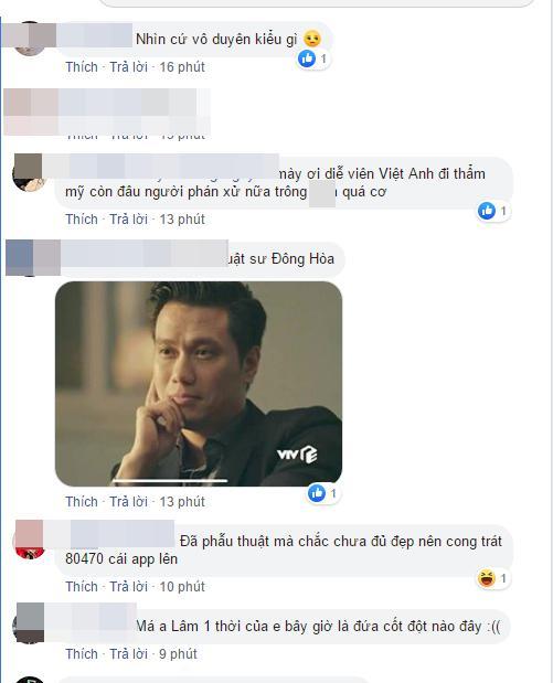 Việt Anh công khai dung mạo sau phẫu thuật thẩm mỹ, dân mạng kêu trời vì giống hệt Lương Bằng Quang-6