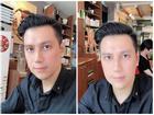Việt Anh công khai dung mạo sau phẫu thuật thẩm mỹ, dân mạng kêu trời vì 'giống hệt Lương Bằng Quang'