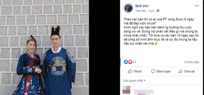 Việt Anh bị chê phẫu thuật thẩm mỹ lỗi, Quế Vân bênh ra mặt: Chờ 15 ngày nữa rồi hãy nhận xét-8