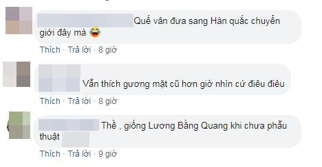 Việt Anh bị chê phẫu thuật thẩm mỹ lỗi, Quế Vân bênh ra mặt: Chờ 15 ngày nữa rồi hãy nhận xét-5
