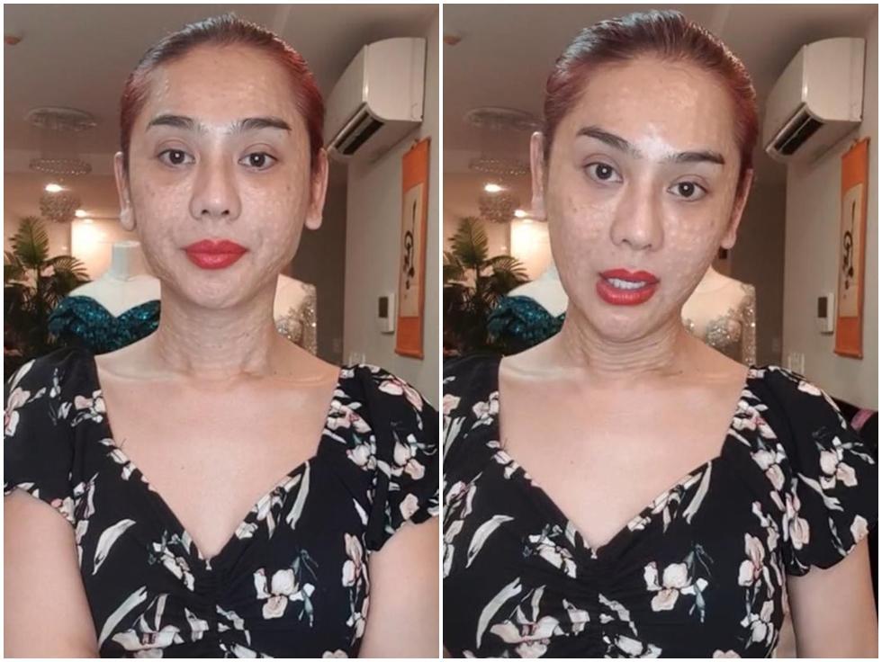 Vừa gây sốc với gương mặt như rắn lột da, Lâm Khánh Chi vẫn tự tin: Em cứ xinh đẹp bất chấp dòng đời xuôi ngược-1