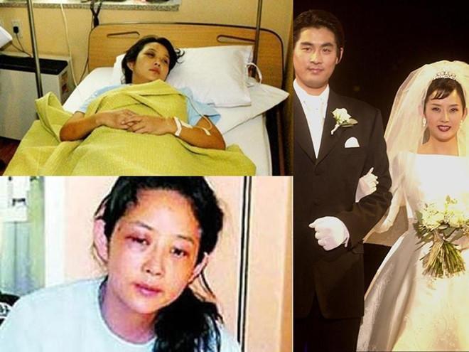 Những minh tinh Hàn Quốc từng bị chồng đánh đến mức phải nhập viện-4