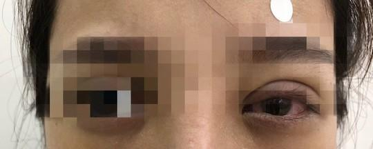 Mắt mờ dần sau nhấn mí ở tiệm spa, cô gái hoảng hốt khi bác sĩ tìm thấy nguyên nhân-2