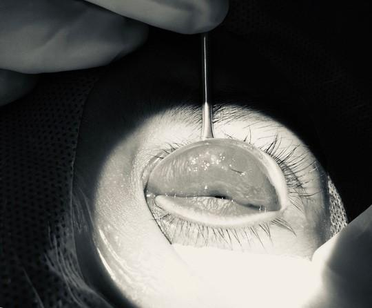 Mắt mờ dần sau nhấn mí ở tiệm spa, cô gái hoảng hốt khi bác sĩ tìm thấy nguyên nhân-1