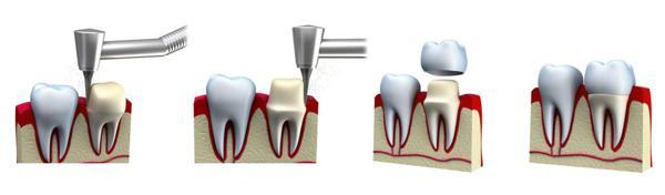 Người nổi tiếng trồng răng loại nào chất lượng?-2