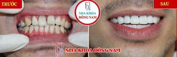 Người nổi tiếng trồng răng loại nào chất lượng?-3