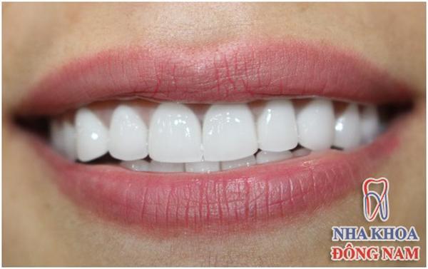 Người nổi tiếng trồng răng loại nào chất lượng?-1