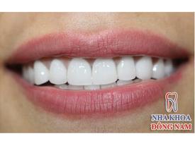 Người nổi tiếng trồng răng loại nào chất lượng?