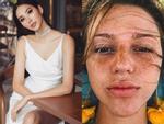 Bản tin Hoa hậu Hoàn vũ 14/7: HHen Niê gây shock với chiếc cằm nhọn xuyên thủng vạn vật ngang ngửa Minh Hằng-11