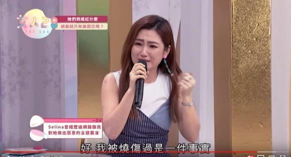 Nữ ca sĩ Đài Loan nức nở khi bị miệt thị vóc dáng sau tai nạn bỏng-1