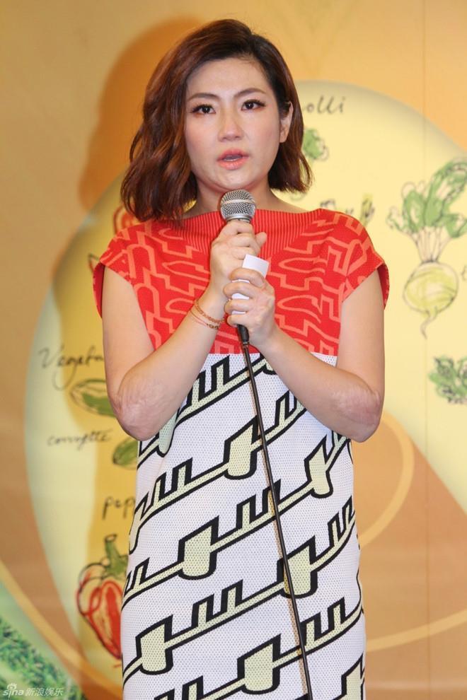 Nữ ca sĩ Đài Loan nức nở khi bị miệt thị vóc dáng sau tai nạn bỏng-2
