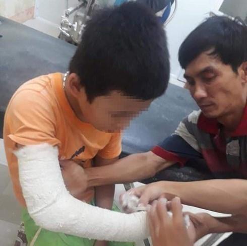 Bé 13 tuổi ở Quảng Nam bị thanh niên chở vào rừng đánh gãy tay, cướp 1,2 triệu-1