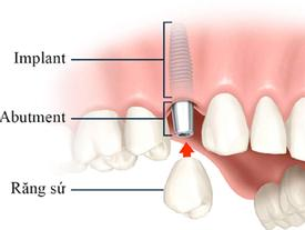 Chi phí trồng răng Implant ở Nha Khoa Đông Nam