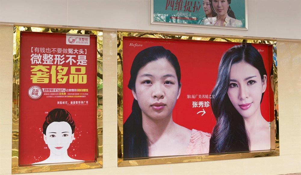 Muốn cuộc sống dễ dàng, giới trẻ Trung Quốc đua nhau đi thẩm mỹ-3