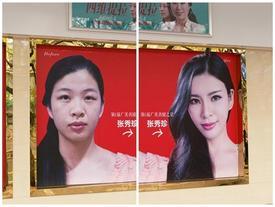 Muốn 'cuộc sống dễ dàng', giới trẻ Trung Quốc đua nhau đi thẩm mỹ