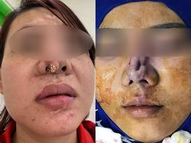 Rùng mình cô gái trẻ công khai chiếc mũi lòi cả sụn trắng xóa, biến dạng đáng sợ sau phẫu thuật thẩm mỹ