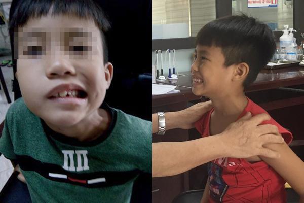 Bé trai 8 tuổi liệt mặt, méo miệng do thói quen dùng điều hoà sai cách-1