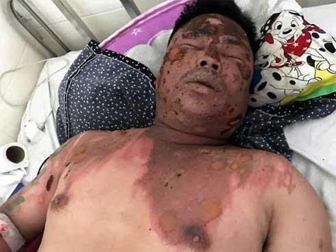 Chỉ muốn hỏi tuổi bố bạn nhậu cho dễ gọi, nam thanh niên ở Lâm Đồng bị hất cả nồi lẩu đang sôi sùng sục vào mặt-1