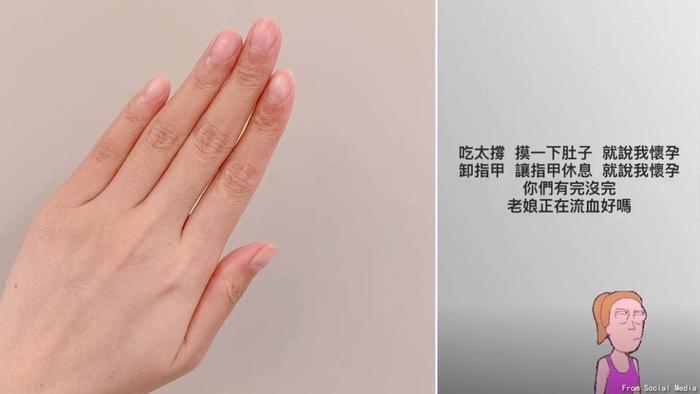 Bị đồn mang bầu vì bỗng dưng tẩy hết sơn móng tay, Dương Thừa Lâm đáp trả cực gắt-2