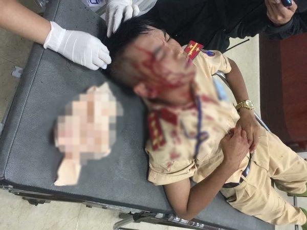Vợ vi phạm giao thông vì chở 3 không đội mũ bảo hiểm, chồng cầm đá tấn công đại uý CSGT nhập viện-1