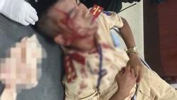 Vợ vi phạm giao thông vì chở 3 không đội mũ bảo hiểm, chồng cầm đá tấn công đại uý CSGT nhập viện