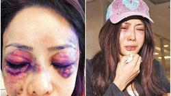 Người mẫu Đài Loan từng bị bạn trai đại gia đánh đập tàn nhẫn