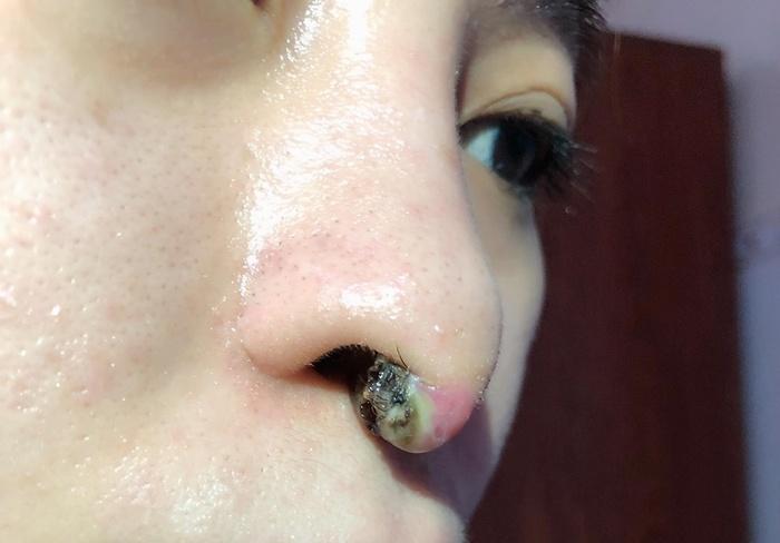 Cô gái nghĩ đến cái chết vì sửa mũi hỏng liên tục đến mức lòi sụn, biến dạng-3