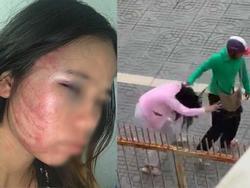 Xót xa những người vợ bầu vượt mặt vẫn đau đớn chịu nhiều trận bạo hành của chồng vũ phu