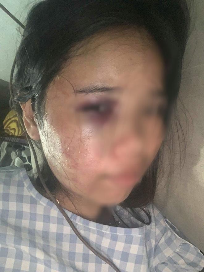 Xót xa những người vợ bầu vượt mặt vẫn đau đớn chịu nhiều trận bạo hành của chồng vũ phu-3