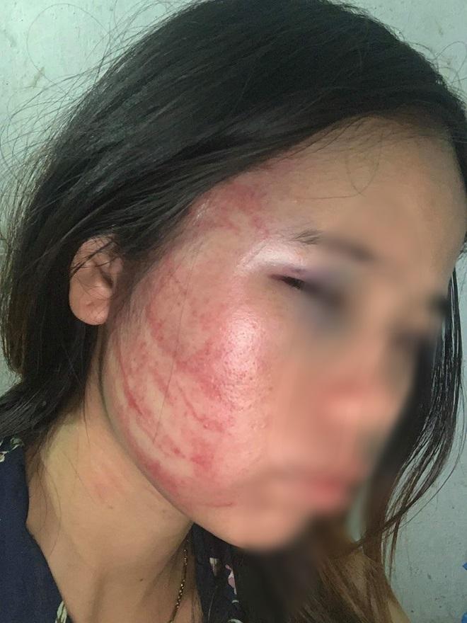 Xót xa những người vợ bầu vượt mặt vẫn đau đớn chịu nhiều trận bạo hành của chồng vũ phu-4