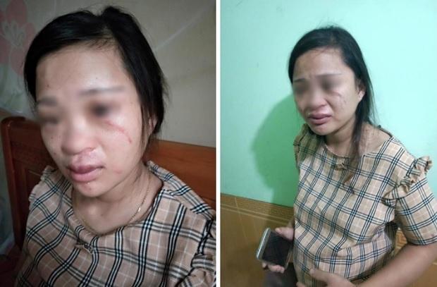 Xót xa những người vợ bầu vượt mặt vẫn đau đớn chịu nhiều trận bạo hành của chồng vũ phu-1