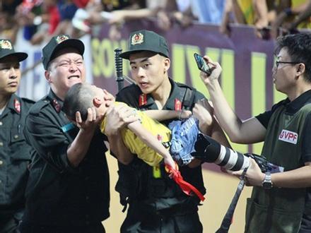 Cảnh sát cơ động cho bé trai cắn tay để tránh bị nuốt lưỡi