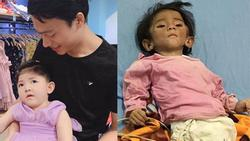 Từng gây xôn xao với cân nặng 3,5kg khi 14 tháng tuổi, cuộc sống của bé gái Lào Cai bây giờ như thế nào?