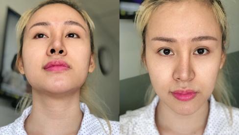 VZN News: Bà Tưng tung clip khoe nhan sắc tái sinh sau khi ám ảnh người nhìn với chiếc mũi biến dạng-1