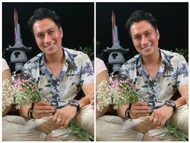 Việt Anh gây hoang mang với gương mặt kém sắc lạ hoắc sau gần 2 tháng phẫu thuật thẩm mỹ