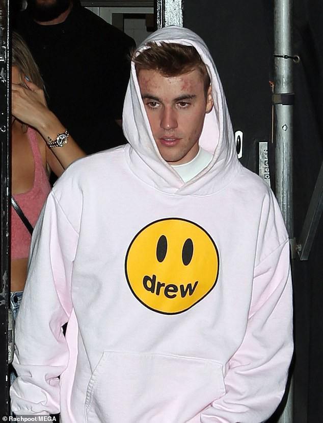 Justin Bieber và những lần bị chê lôi thôi, mặt đầy mụn-1