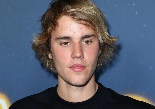 Justin Bieber và những lần bị chê lôi thôi, mặt đầy mụn-6