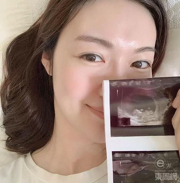 Hoa hậu Hong Kong đẻ 4 năm 3 đứa con-1